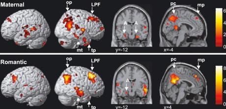 doi:10.1016/j.neuroimage.2003.11.003